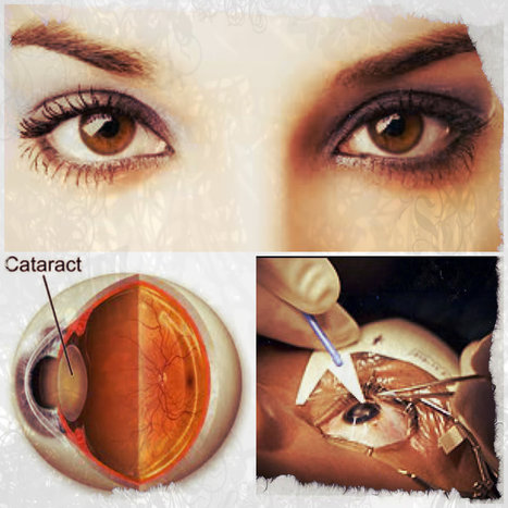 Act On It: Safe Cataracts Removal | The Ever Important Sense of Sight | Scoop.it