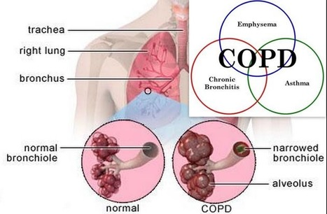 Lung Disease Treatment in Coimbatore | Pulmonary Disease Symptoms | Heart Disease Treatment | Scoop.it