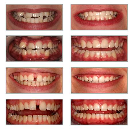 Orthodontics | Cosmetic Dentistry | Scoop.it