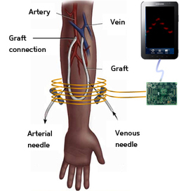 wireless device powers implanted blood-pressure sensor, eliminating batteries | pressure sensor | Scoop.it