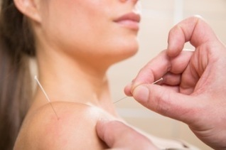 Acupuncture Found Effective For Post-Surgical Shoulder Pain | Acupuncture, its benefits and risk | Scoop.it