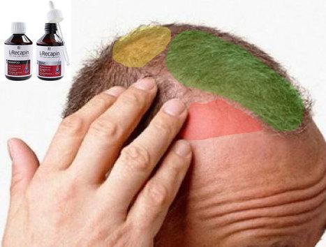 L Recapin Saç Dökülmesine Karşı Serum | Dizi Haberleri | Scoop.it