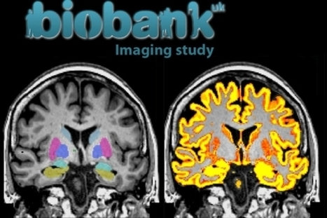 Massive U.K. Brain-Mapping Project Releases First Results   IELTS, ESP, EAP and CALL   Scoop.it