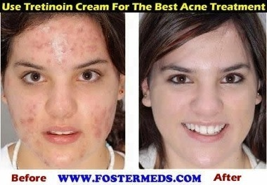 Acne and Scar Treatment Cream - Generic Tretinoin Cream | Remedystore | Scoop.it