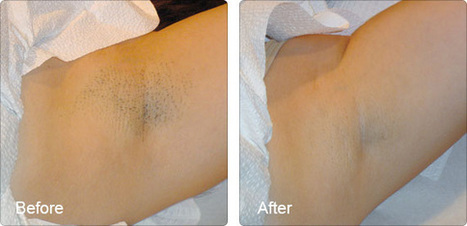 Laser Clinic Plano, Tx | Laser Hair Removal | Scoop.it