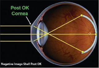 Children's Eyesight | orthokeratology | Scoop.it