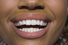Smiling can reduce both heart rate and stress: study - News1130 | Cosmetic Dentistry | Scoop.it