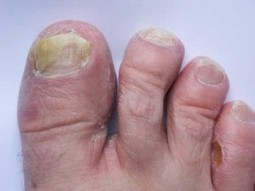 Fungus on Feet - Causes, Symptoms,Treatment, and More | foot fungus treatment | Scoop.it