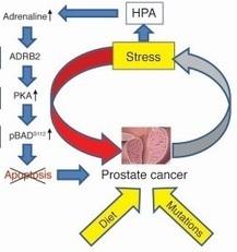 CANCER de la PROSTATE: Le stress réduit l'efficacité des ... - santé log   Prévention de la santé et du stress.   Scoop.it