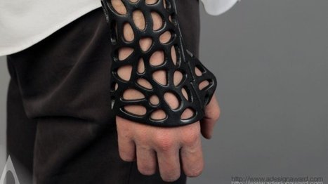 3D-printed cast concept uses ultrasound to heal broken bones | Positive futures | Scoop.it