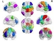 Los adictos a los videojuegos tienen un cerebro distinto   Innovación   Scoop.it