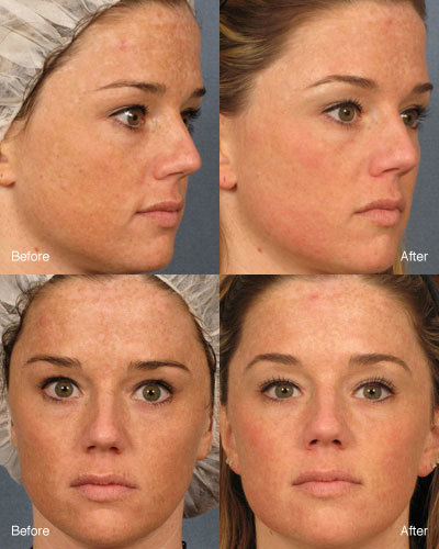 What you can Achieve with Facial Resurfacing in Maryland | Best website pages | Scoop.it