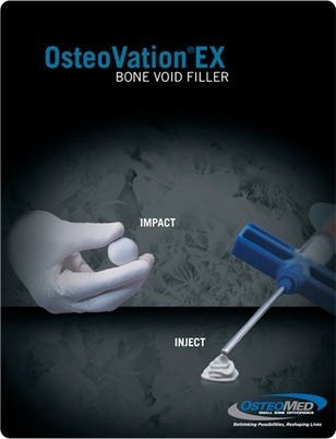 OsteoMed launches bone void and gap filler | Dental Implant and Bone Regeneration | Scoop.it