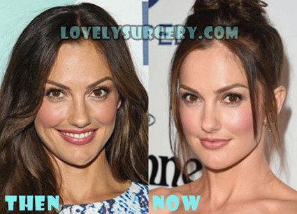 Minka Kelly Plastic Surgery Before and After Photos | Celebrity Plastic Surgery | Scoop.it