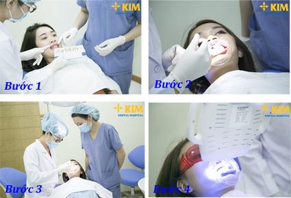 Làm cách nào để răng trắng hơn đẹp hơn với những bước đơn giản nhất   tocmaidephanquoc   Scoop.it