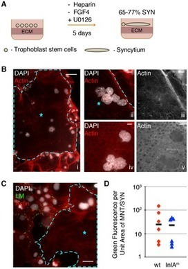 Placental Syncytium Forms a Biophysical Barrier against Pathogen Invasion | Virology News | Scoop.it
