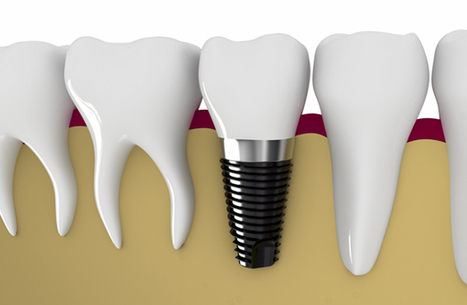 Dental Implants Costs in New Delhi | Dental Clinic in New Delhi | Scoop.it