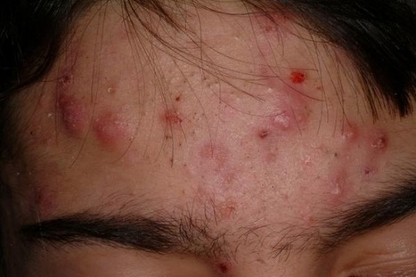 Get rid of forehead acne | Healthy Tips | Scoop.it