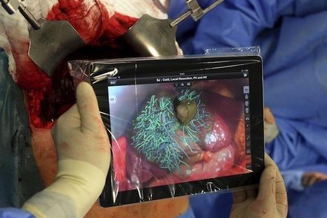 Una app de realidad aumentada ayuda a los cirujanos a realizar algunos procedimientos quirúrgicos | Digital Healthcare Trends | Scoop.it
