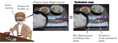 Helping the one-eye sighted to have a sense of depth | Medical Engineering = MEDINEERING | Scoop.it