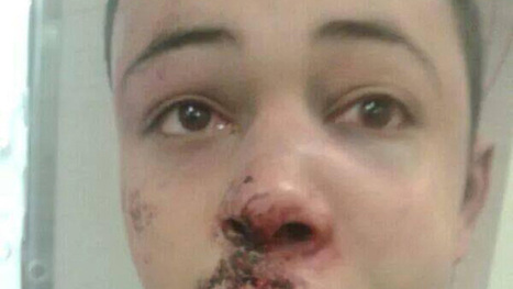 US 'profoundly troubled' by brutal beating of Palestinian teen who turned out to be American | SocialAction2014 | Scoop.it