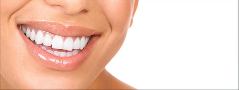 Looking for expert Orthodontist Garden Grove? | Dental Care Services | Scoop.it