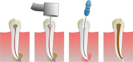 Preparation for Root Canal Procedure – What Should You Know? | Health Tips | Scoop.it