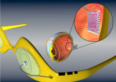Artificial retina receives FDA approval | KurzweilAI | Longevity science | Scoop.it