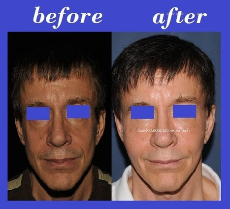 Cheek Fat Injection Photos Thailand | Bangkok Aesthetic Surgery Center | The Best Plastic Surgery Clinic In Thailand | Scoop.it