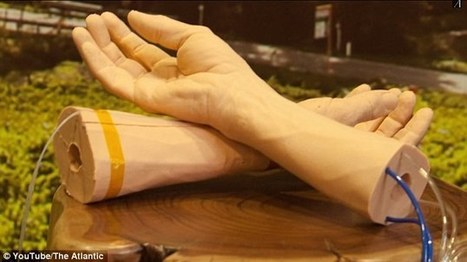 Google is using human skin to develop a cancer-detecting wristband | Cancer - Advances, Knowledge, Integrative & Holistic Treatments | Scoop.it