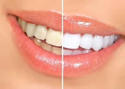 Afford A Dazzling White Smile With These Simple Methods | Dental Health Service | Scoop.it