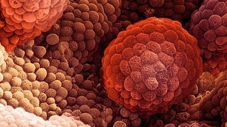 Breast cancer drug may help men with prostate cancer | Jeff Morris | Scoop.it