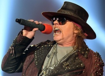 Axl Rose Plastic Surgery Before and After   Celebie   Scoop.it