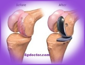 Things to Consider When You Opt for Knee Replacement Surgery | Rheumatologists and Orthopaedic Surgeons | Scoop.it
