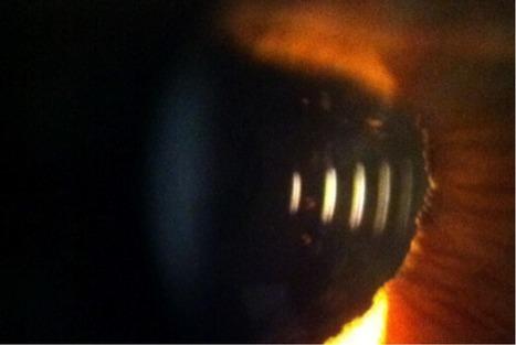 Lente intraocular progresiva - Luis Cornejo | Casos de óptica y optometria | Scoop.it