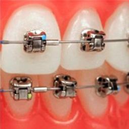 Dental Braces Treatment in Stuart - by Francis J. DuCoin DMD | Francis J. DuCoin DMD | Scoop.it