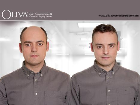 Hair transplantation, Hair Restoration, Hair Implantation in India | Hair Treatments | Scoop.it