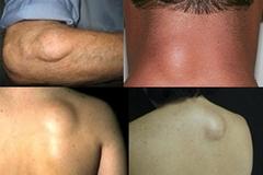 Ciri-Ciri Penyakit Lipoma ,Ternyata Lipoma Bahaya Wajib Baca | AJENG HERBAL | Scoop.it