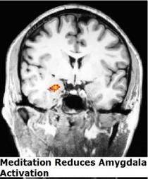 La MÉDITATION modifie durablement le cerveau et les émotions ... - santé log   MBSR   Scoop.it