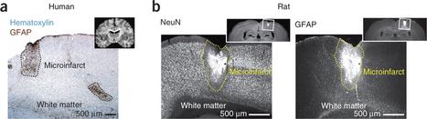 Individuare le piccole ischemie cerebrali per prevenire i danni più gravi | Med News | Scoop.it