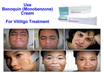 An Enduring Treatment For White Patches On Skin Is Monobenzone Cream | Remedystore | Scoop.it