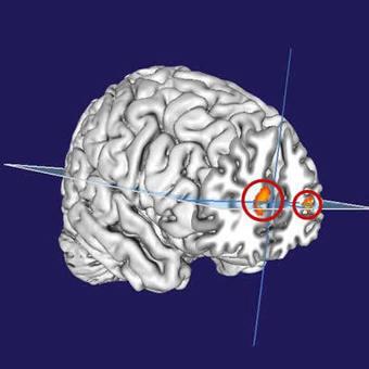 Lucid Dreams and Metacognition | Social Neuroscience Advances | Scoop.it