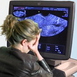 Vaginal Atrophy | Women Health | Scoop.it