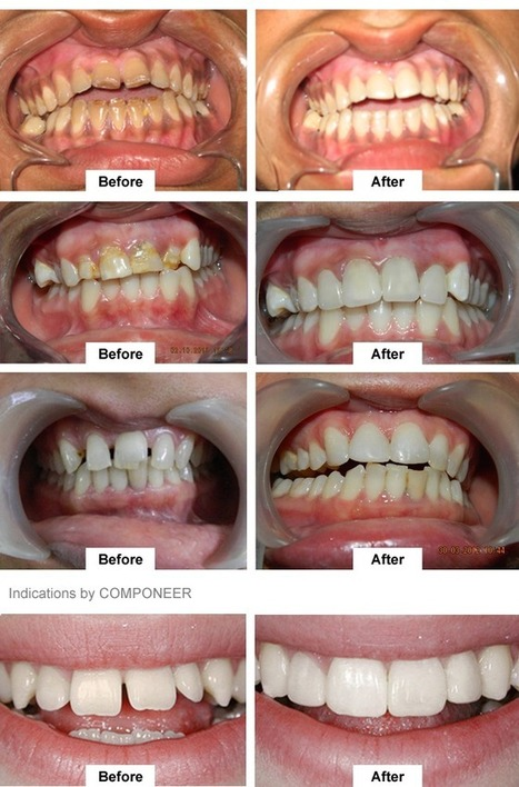 Cosmetic Dentistry Treatments in Yamuna Nagar, Haryana | Business | Scoop.it