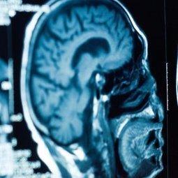 Alzheimer : une restauration des souvenirs possible ?   Maladies et infections   Scoop.it