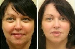 Why Liquid Facelift is the Best Way to Fight Signs of Aging? | Jennifer Levine | Scoop.it