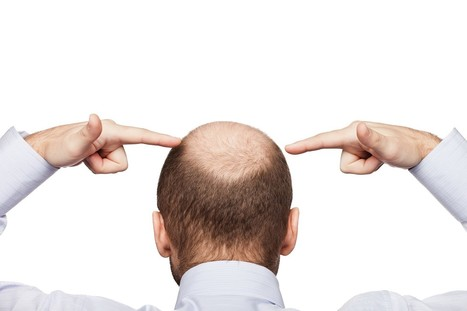 Information on Androgenetic Alopecia: Hair Transplant Surgery and More | Dr. Anthony Farole, D.M.D. | Scoop.it