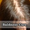 Baldness Cure