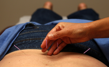 Acupuncture for stress - WCVB Boston | Acupuncture, its benefits and risk | Scoop.it