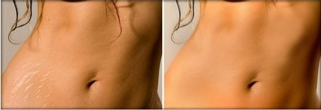 How To Prevent Stretch Marks With How To Get Rid Of Ugly Stretch Marks   How To Get Your Ex Boyfriend Back   Scoop.it